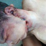 جدا شدن سر از بدن نوزاد